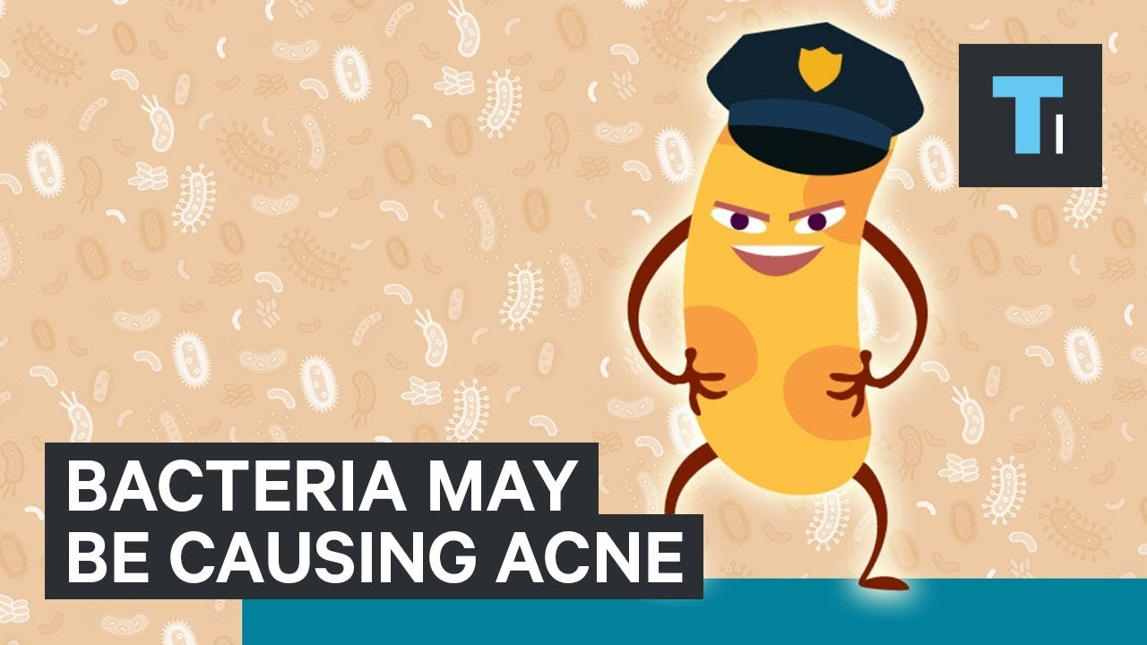 Science of why some people have worse acne