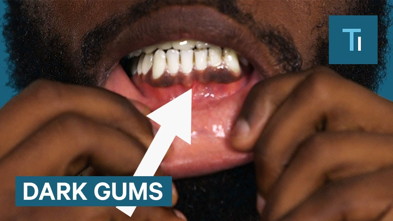Here's why some people have black gums