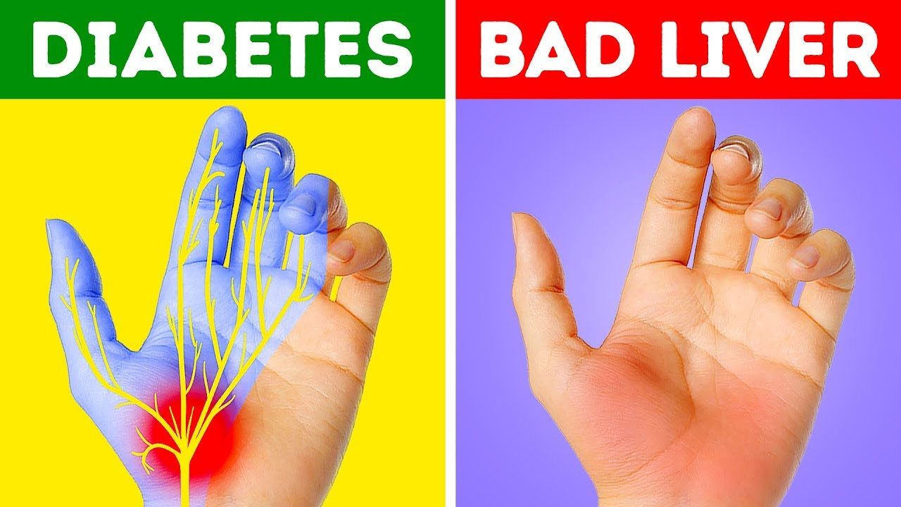 12 Health Problems Your Hands Are Warning You About