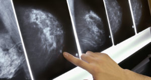 High-Deductible Insurance Linked To Delays In Cancer Diagnosis And Treatment : Shots